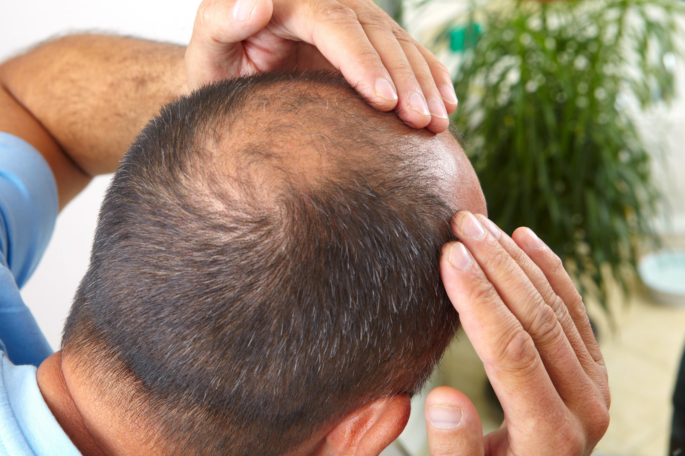 A new study has found that regulatory T cells also directly trigger stem cells in the skin to promote healthy hair growth.