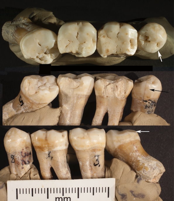 The roots of dentistry run deep, as far back as 130,000 years ago, according to a new study from researchers at the University of Kansas.