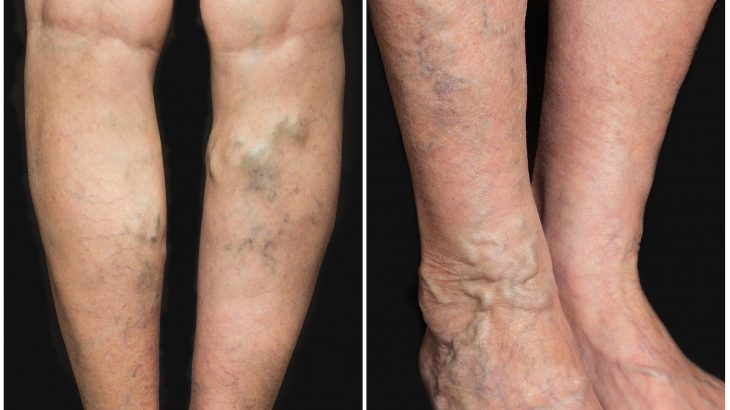 Researchers at the Stanford University School of Medicine have found a connection between height and varicose veins.
