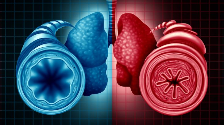 Obesity may be the cause of about a quarter (23 to 27%) of asthma cases in children who struggle to maintain healthy weight.