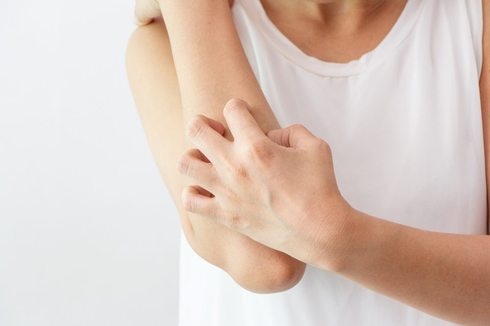 Researchers at the European Molecular Biology Laboratory (EMBL) may have found a new, less damaging way to scratch that itch.