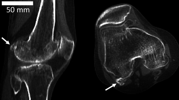 An extra knee bone called the fabella is appearing more and more often in modern humans, and diet may be the cause. (Photo credit: Imperial College London)