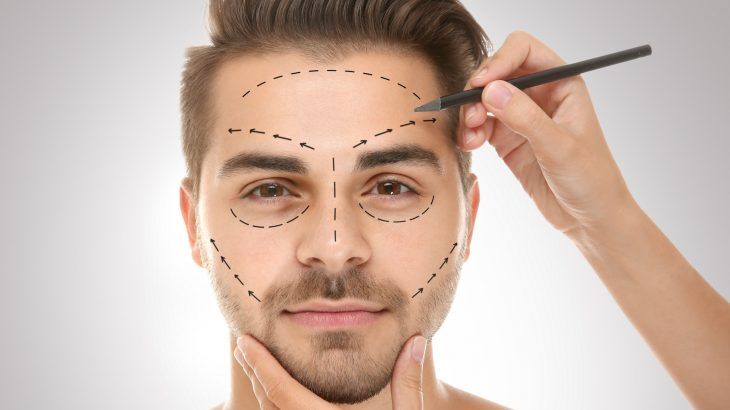 When a man opted to undergo facial plastic surgery, he was generally perceived as more attractive, trustworthy, and likable by others post-procedure.